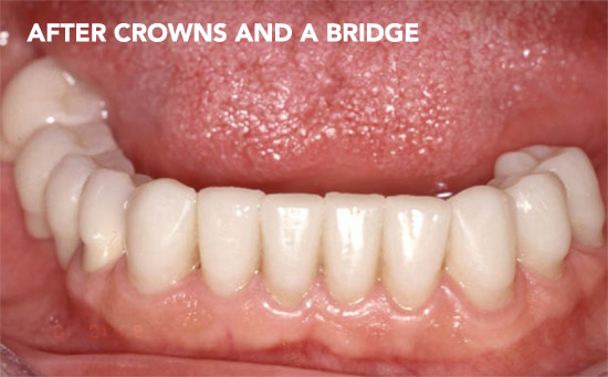 Crown-Bridge-After