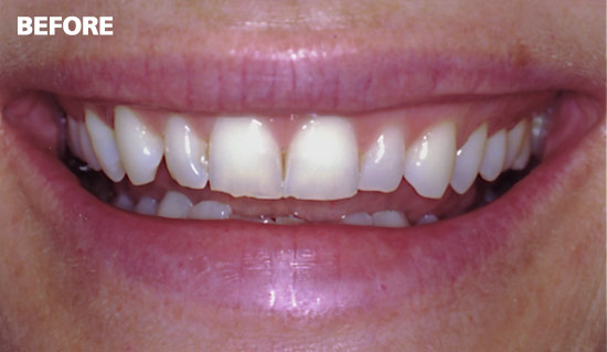 Veneers1-before1
