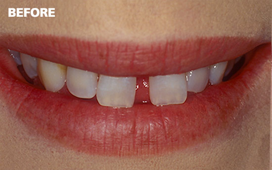 Veneers4-before