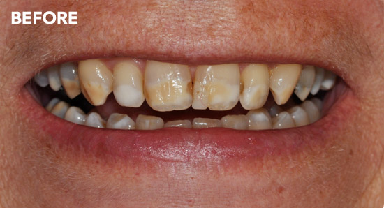 veneers5-before