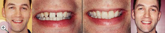 Pukekohe-Dental-smile-gallery-02