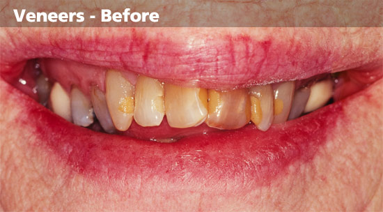 discoloured-teeth-Before