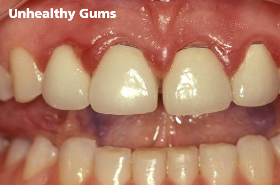 unhealthy-gums
